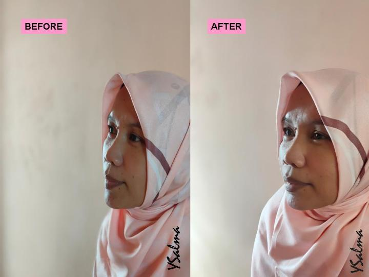 Face care Scarlett before after